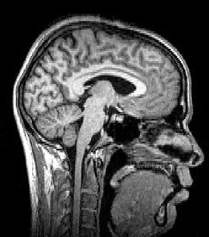 MRI scan of the Sagittal brain. Source: Answers.com